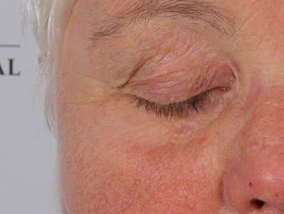 xanthelasma behandling
