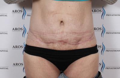 Vægttab efter fjernelse af hormonspiral