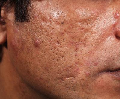 ar efter acne