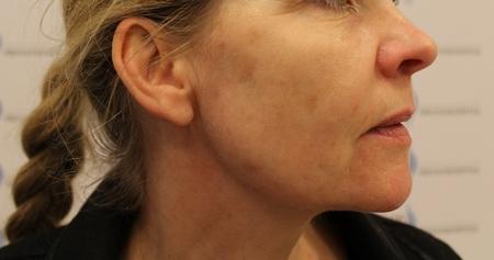 Pigmentforandringer på næse