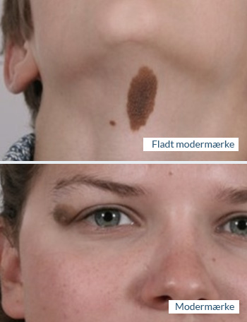 hudlæge modermærker