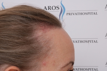 hvad koster hårtransplantation